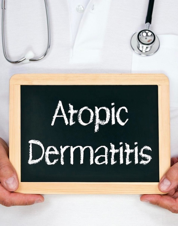 Atopic-Dermatitis-and-Allergic-Contact-Dermatitis-ACW-Anne-Cohen-Writes-healthy-lifestyle-doctors-journal