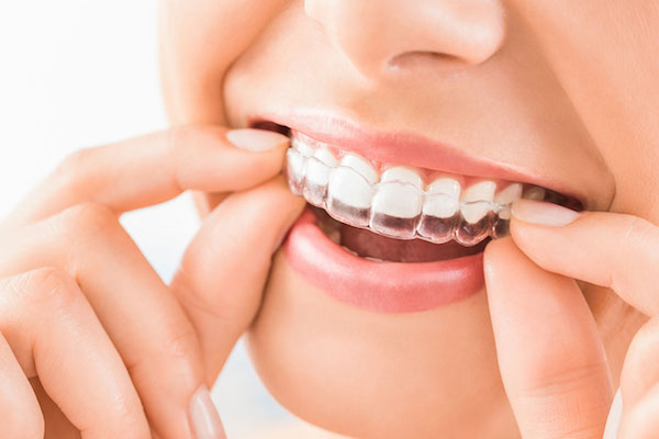 The-Pros-and-Cons-Decide-Between-Invisalign-and-Braces-acw-doctors-journal